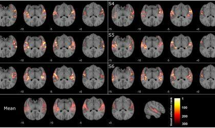 Сканирование мозга сможет определить, какую музыку вы слушаете